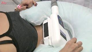 Cryolipolyse : mincir par le froid peut être dangereux - Le Magazine de la santé