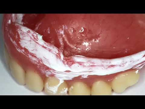 Complete Denture Base Adjustment