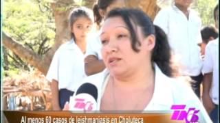 TVC Tn5 Matutino -  Se detectan 60 casos de Leishmaniasis en Choluteca