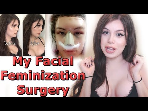 I'M BACK! My Facial Feminization Surgery