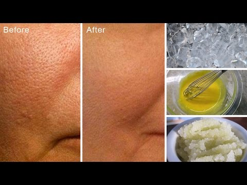 Home Remedies for Open and Large Pores
