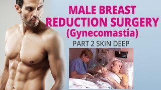 Part 2 Skin Deep Male Breast Reduction (Gynecomastia) Surgery Thumbnail