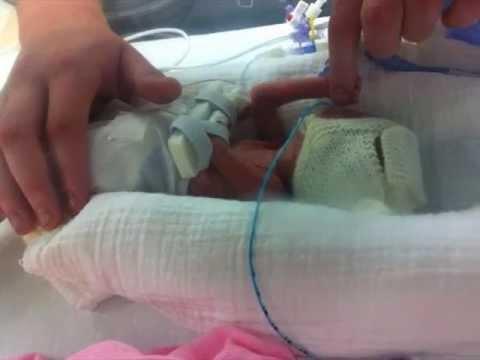 23 Week baby. 560grams. Story in Pictures