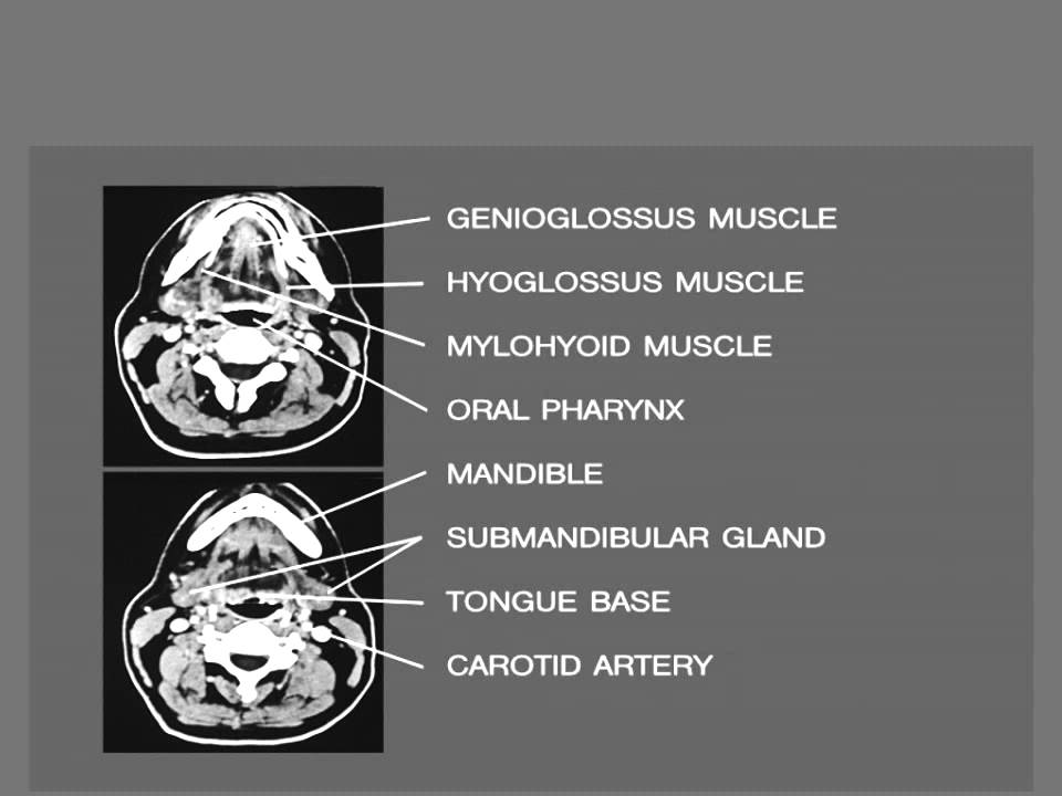 Ct Mri Mouth Salivary Glands Dr Ahmed Eisawy Youtube
