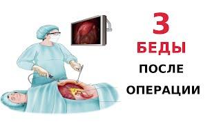 Опущение матки 3 проблемы после операции по поводу опущения матки