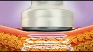 Cele mai frecvente întrebări despre tratamentul cavitației pentru pierderea în greutate