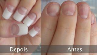 Solução para unhas roidas (tecnica francesinha de acrilico)