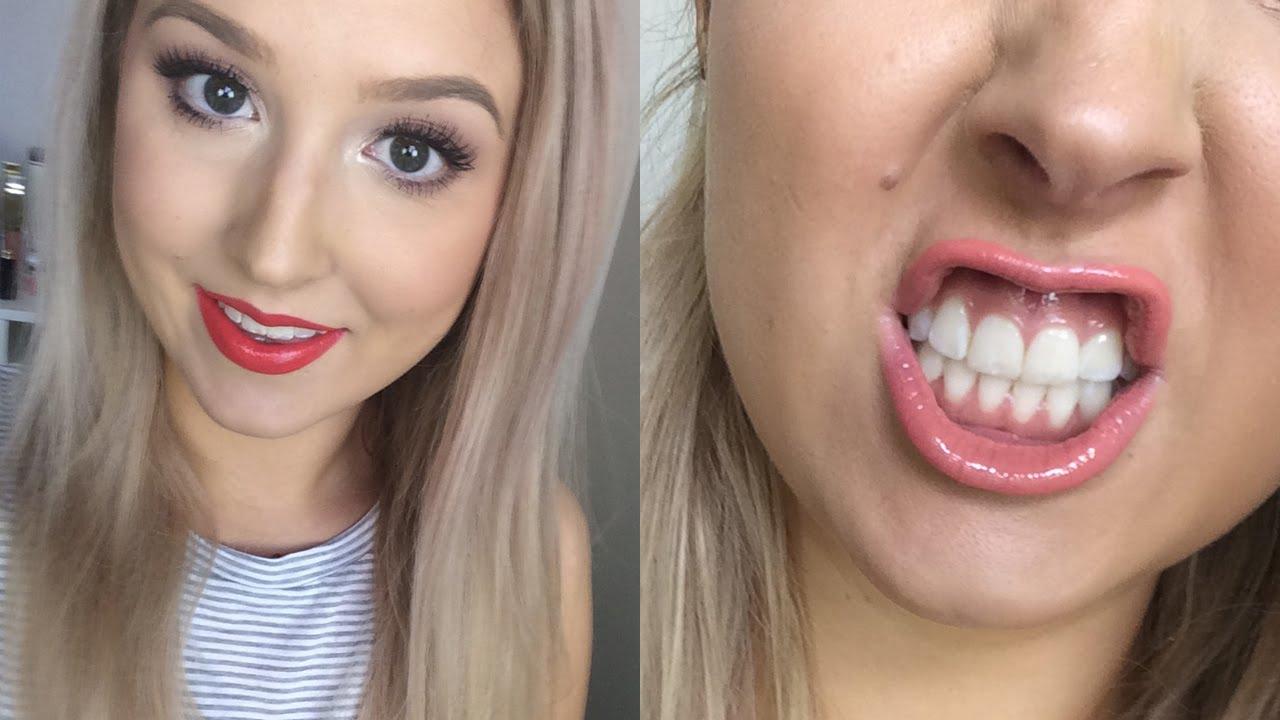 Does Oil Pulling Work Diy Teeth Whitening Youtube