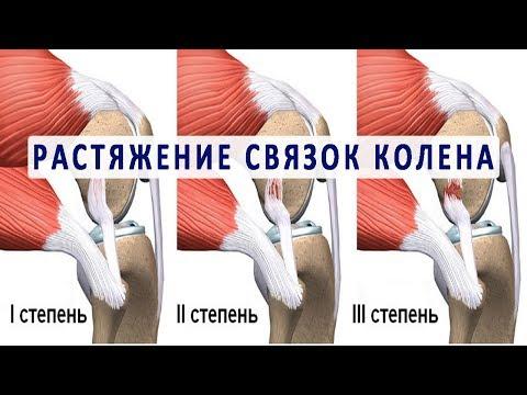 Вопрос: Как выявить симптомы растяжения мышц колена?