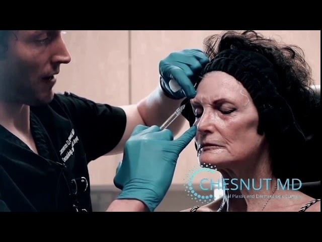 Notox: non-surgical forehead reshaping and elevation with Dr. Chesnut