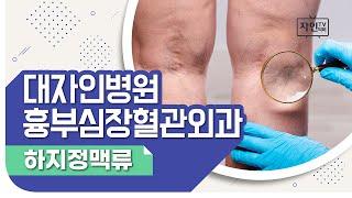 [자인TV] 흉부심장혈관외과_하지정맥류