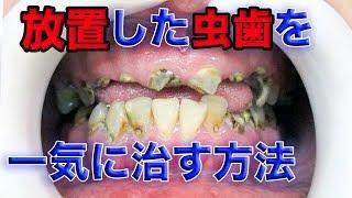 """『放置した虫歯』を一気に治す方法[dentistry](一次治愈""""被放置的蛀牙"""")"""