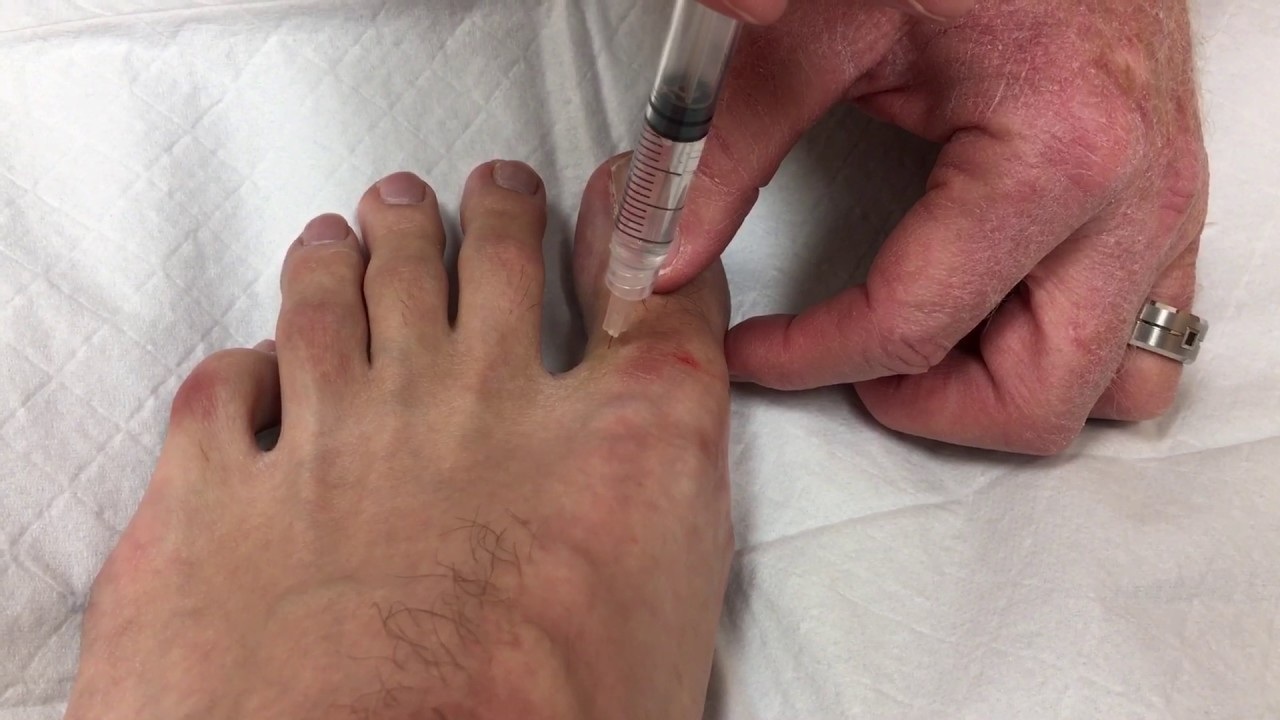 Local anesthesia in big toe for ingrown toenail removal - YouTube