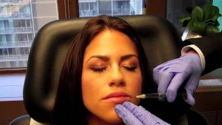 Juvederm Lip Injection Dr Naderi Maryland Virginia Washington DC