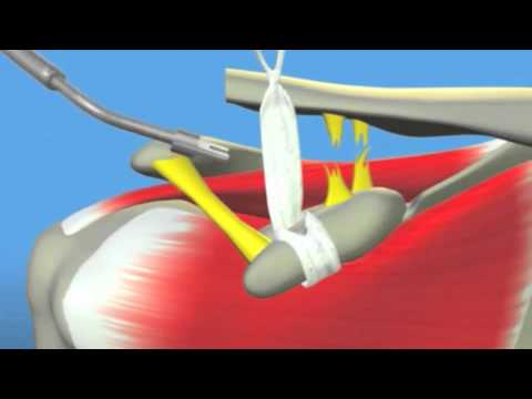ACJ Dislocation Shoulder Surgery Dr Terry Hammond