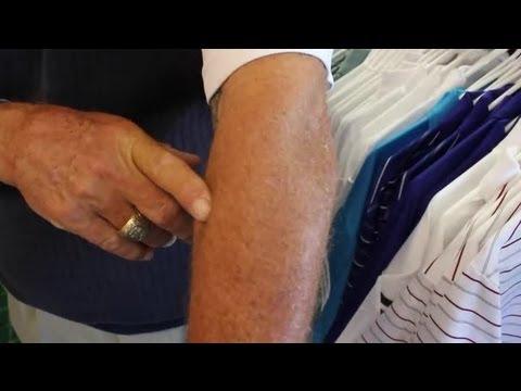Strengthening Exercises for Golfer's Elbow : Golf Tips
