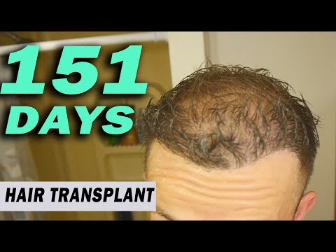 FUE Hair Transplant 151 Days (post op) Istanbul, Turkey GROWTH STAGE
