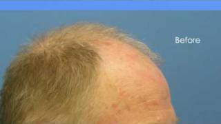 Doctor Hasson Patient - 3337 Grafts - 1 Session