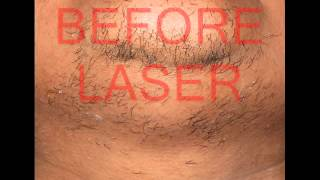 LASER HAIR REMOVAL / UNWANTED HAIR Thumbnail