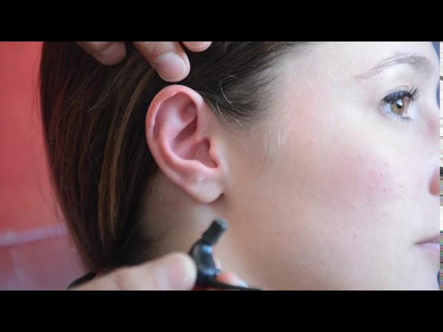 VIDEO TUTORIEL 08 - Positionnement de l'ostéophone intra-auriculaire