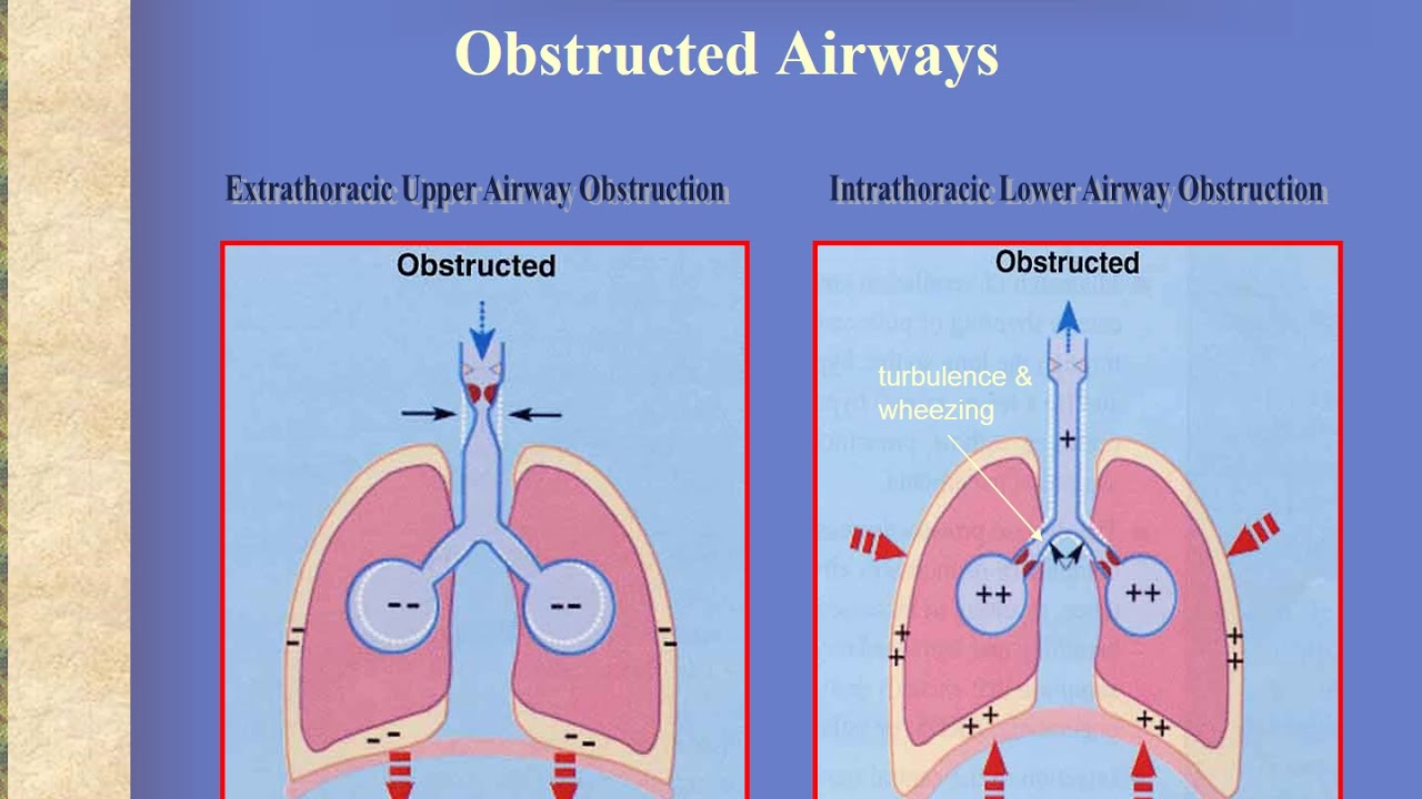 Basics of Pediatric Airway Anatomy, Physiology and Management - YouTube