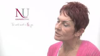 Face Lift Surgery Treatment - Liverpool Leeds London Manchester Sheffield UK Thumbnail