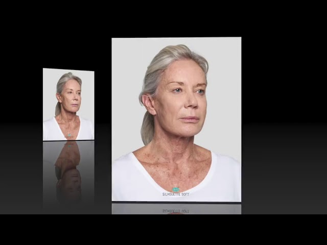 Silhouette Soft One Stitch Facelift