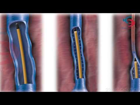 Лечение варикоза и сосудистой сетки. Радиочастотная облитерация. Креде Эксперто | радиочастотная | облитерация | сосудистая | эксперто | варикоза | лечение | варикоз | сетка | креде | ксмт