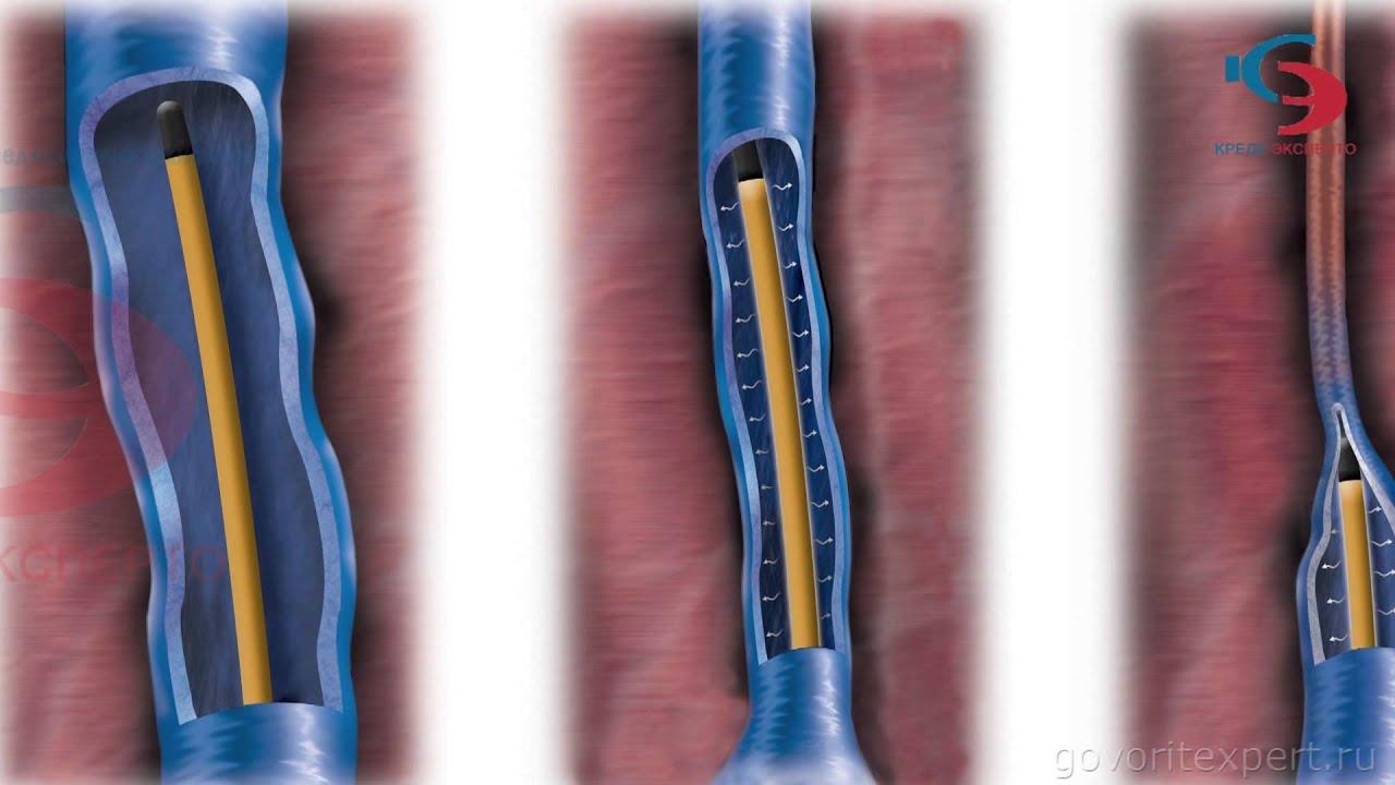 Что делать если лопнула вена на ноге под кожей