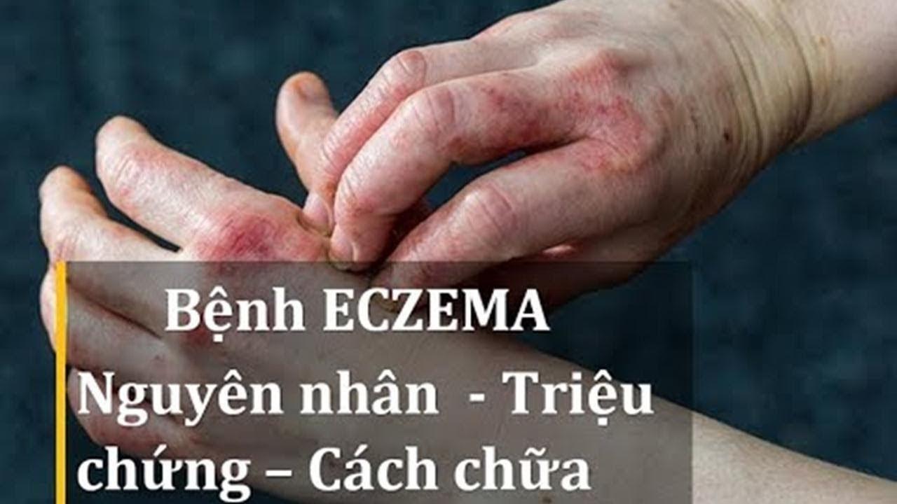 Bệnh eczema là gì? Nguyên nhân, triệu chứng và cách chữa hiệu quả