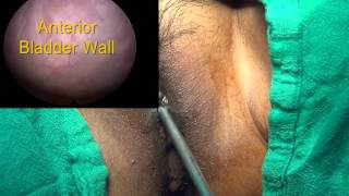Repeat youtube video Cystoscopy in Female for Biopsy