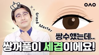 [겹쌍꺼풀 재수술] 내 눈은 하나인데  쌍꺼풀은 여.러…
