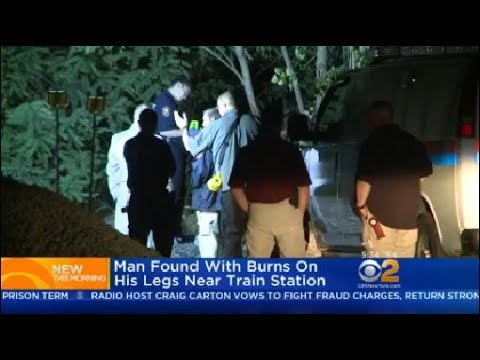 Man Found With Burns On His Legs At Glen Cove Train Station
