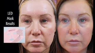 Current Body LED Light Therapy Mask - Review/Before & After Photos