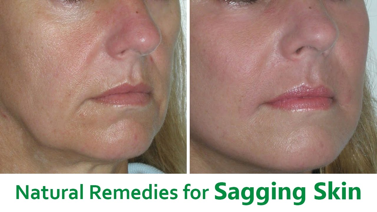 Rid facial sagging