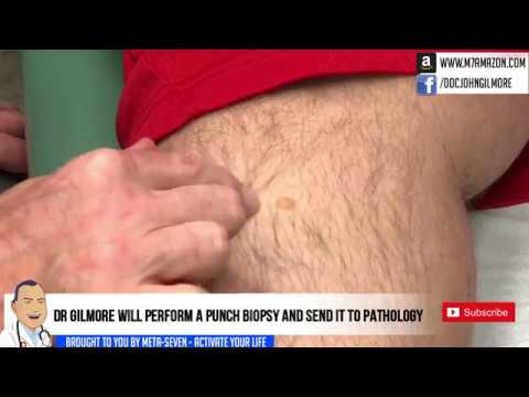 legend's cyst punched? punch biopsy removal -