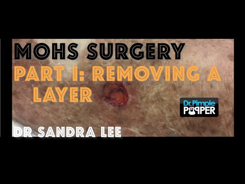 Treating Skin Cancer With Mohs Surgery Part Taking Layer Filmed With Gopro