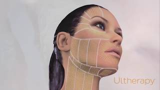 The science behind Ultherapy thumbnail