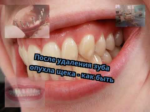 Удалили зуб опухла щека и десна болит щека