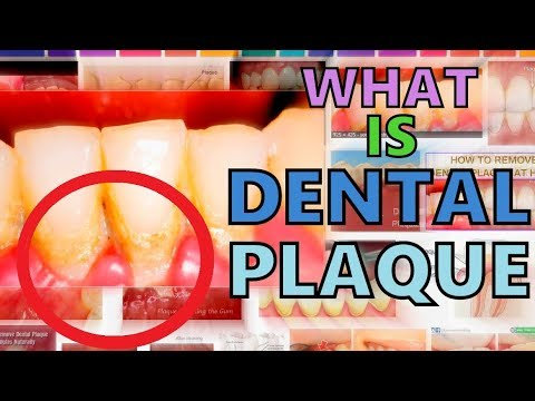 WHAT IS DENTAL PLAQUE? DENTAL PLAQUE MADE EASY - COMPOSITION - FORMATION - EFFECTS