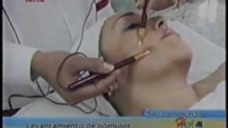 LEVANTAMIENTO DE POMULOS Y ROSTRO - INSTITUTO DE ESTETICA SIGLO XXI - PERU
