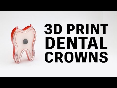 How to 3D print PFM dental crowns // Glidewell Laboratories