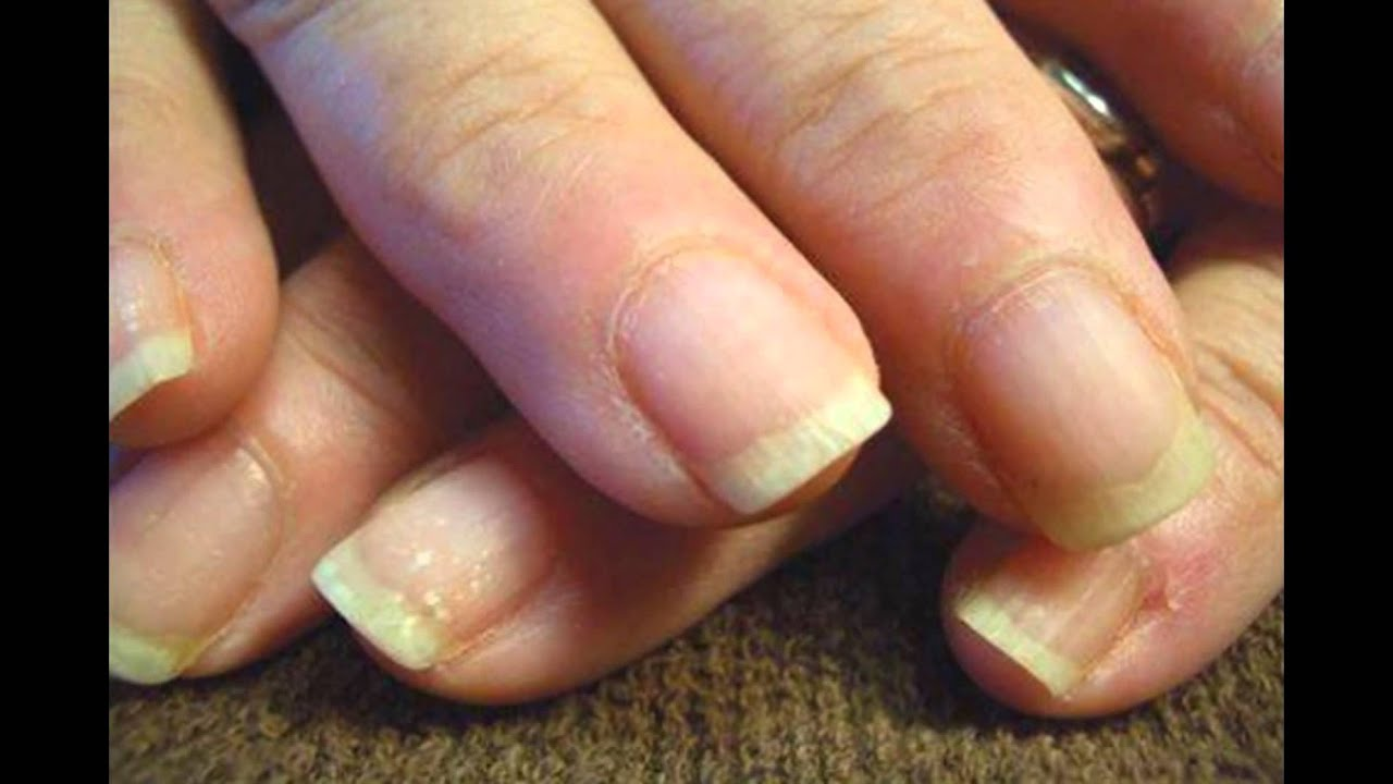 Ridged Nails Symptoms And Causes