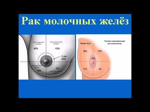 Операционное лечение кисты в грудных железах: отзывы