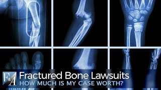 How Much is a Fracture Injury Lawsuit Worth ?