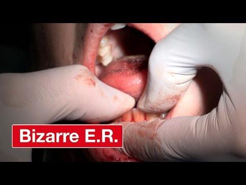 Surgery To Fix A Broken Jaw- Bizarre ER