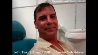 Dental Work Mexico Cancun Dentist Thumbnail