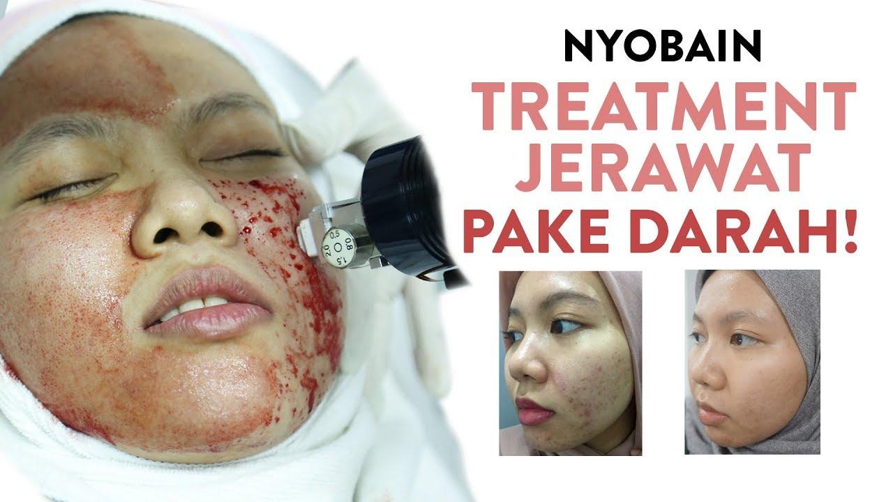 Skincare Treatment Laser Menghilangkan Bopeng Jerawat Yang Paling Baik