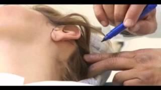 Lifting Facial / Dr. Jairo Zalamea / Cirugía Plástica