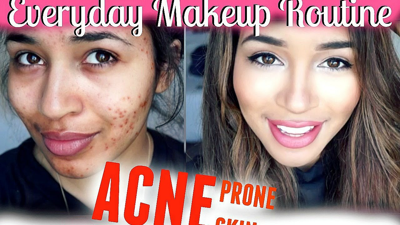 Everyday makeup routine acne prone skin youtube ccuart Image collections